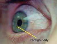 foreign body eye injury